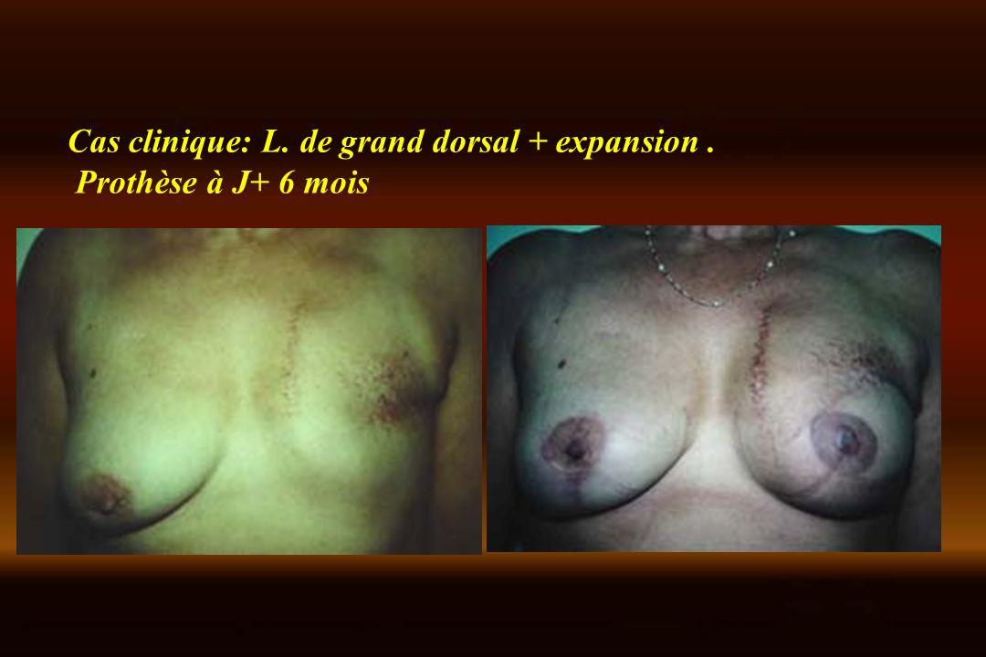 Cas clinique: L. de grand dorsal + expansion. Prothèse à J+ 6 mois
