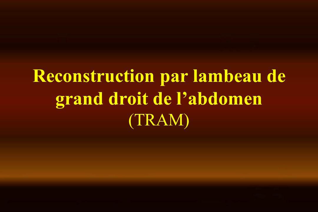 Reconstruction par lambeau de grand droit de labdomen (TRAM)