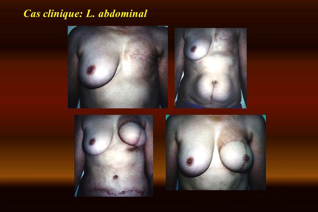 Cas clinique: L. abdominal