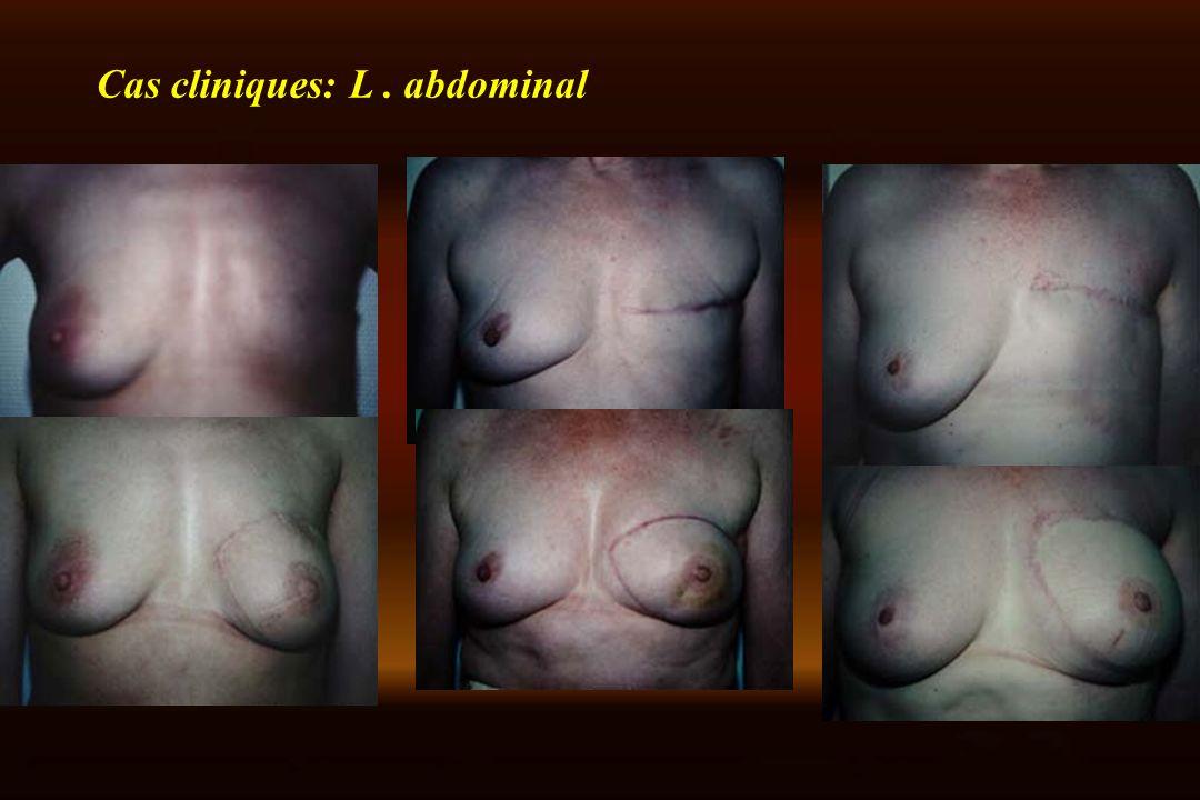 Cas cliniques: L. abdominal
