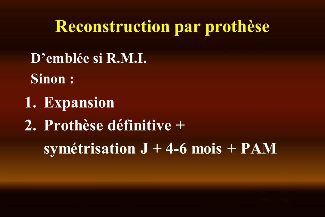 Reconstruction par prothèse 1.Expansion 2.Prothèse définitive + symétrisation J + 4-6 mois + PAM Demblée si R.M.I. Sinon :