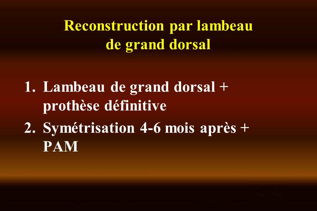 Reconstruction par lambeau de grand dorsal 1.Lambeau de grand dorsal + prothèse définitive 2.Symétrisation 4-6 mois après + PAM