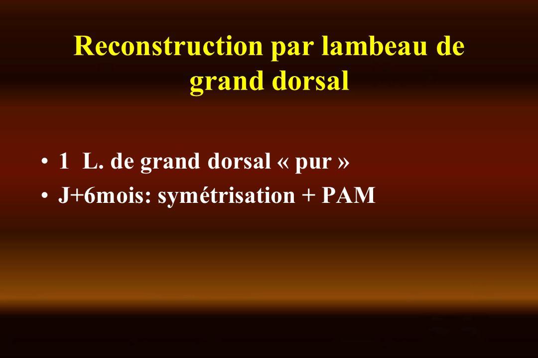 Reconstruction par lambeau de grand dorsal 1 L. de grand dorsal « pur » J+6mois: symétrisation + PAM