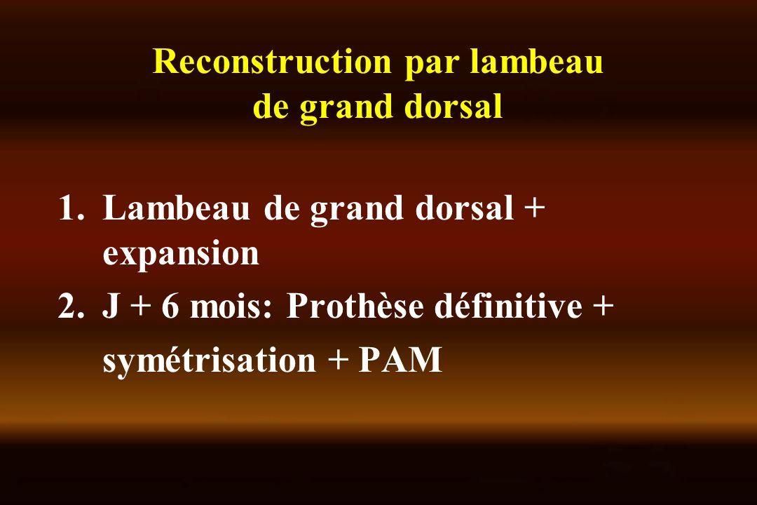 Reconstruction par lambeau de grand dorsal 1.Lambeau de grand dorsal + expansion 2.J + 6 mois: Prothèse définitive + symétrisation + PAM