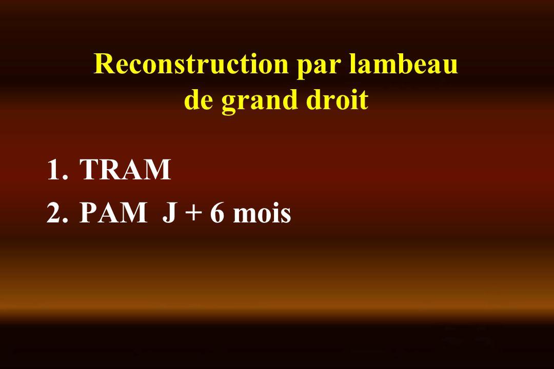 Reconstruction par lambeau de grand droit 1.TRAM 2.PAM J + 6 mois