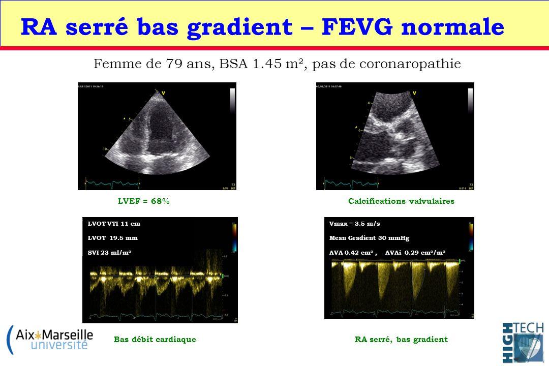 RA serré bas gradient – FEVG normale Femme de 79 ans, BSA 1.45 m², pas de coronaropathie Calcifications valvulaires LVOT VTI 11 cm LVOT 19.5 mm SVI 23