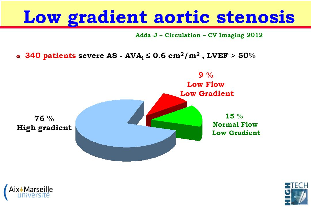 Low gradient aortic stenosis 9 % Low Flow Low Gradient 76 % High gradient 15 % Normal Flow Low Gradient 340 patients severe AS - AVA i 0.6 cm 2 /m 2,