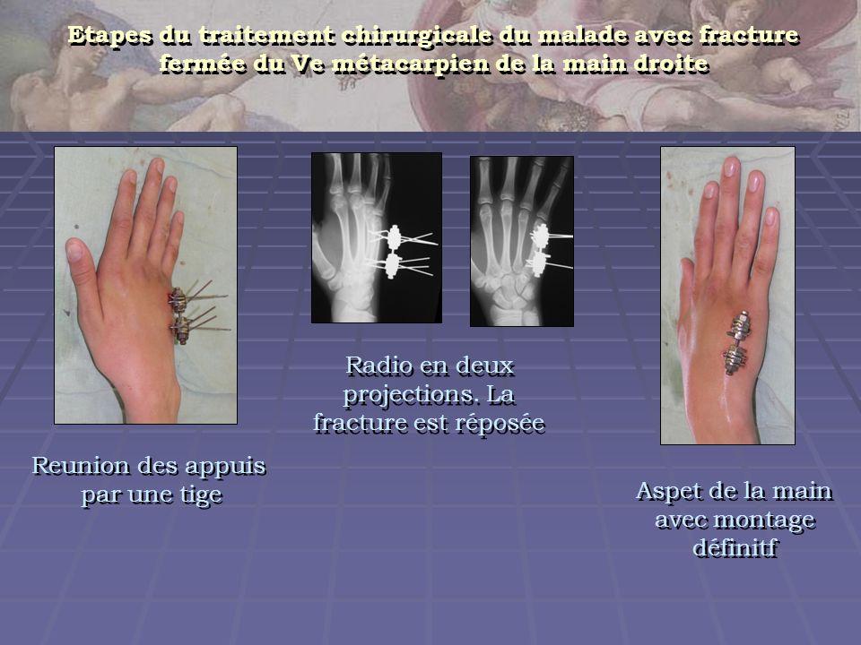Reunion des appuis par une tige Reunion des appuis par une tige Aspet de la main avec montage définitf Etapes du traitement chirurgicale du malade ave