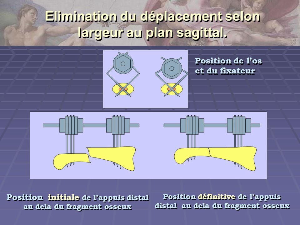 Position initiale de lappuis distal au dela du fragment osseux Position initiale de lappuis distal au dela du fragment osseux Position définitive de l