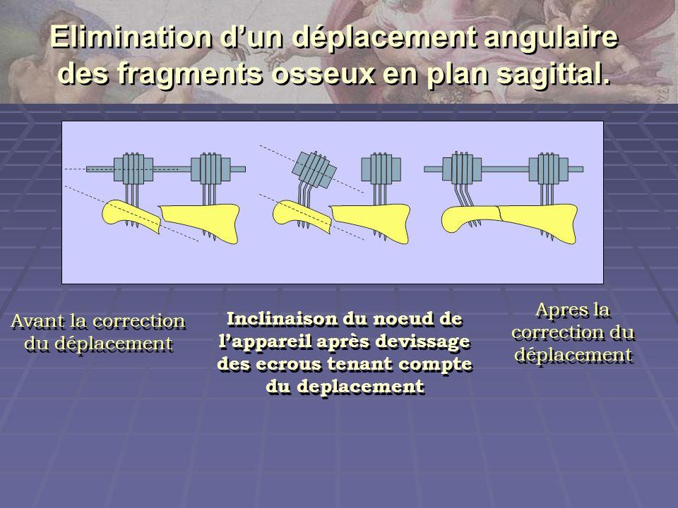Elimination dun déplacement angulaire des fragments osseux en plan sagittal. Inclinaison du noeud de lappareil après devissage des ecrous tenant compt