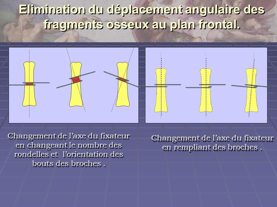Elimination du déplacement angulaire des fragments osseux au plan frontal. Changement de laxe du fixateur en rempliant des broches. Changement de laxe