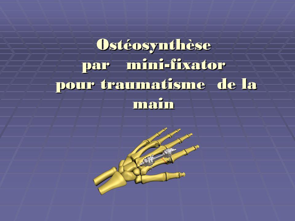 Dans des lésions importantes des tissus mous de la main, de lavant-bras sans des fractures présentées, mais lécrasement marqué, après avoir réaliser le traitement chirurgical primaire, nous faisons un ostéosynthèse du membre avec fixation des articulations adjacentes afin de favoriser le processus de la régénération.