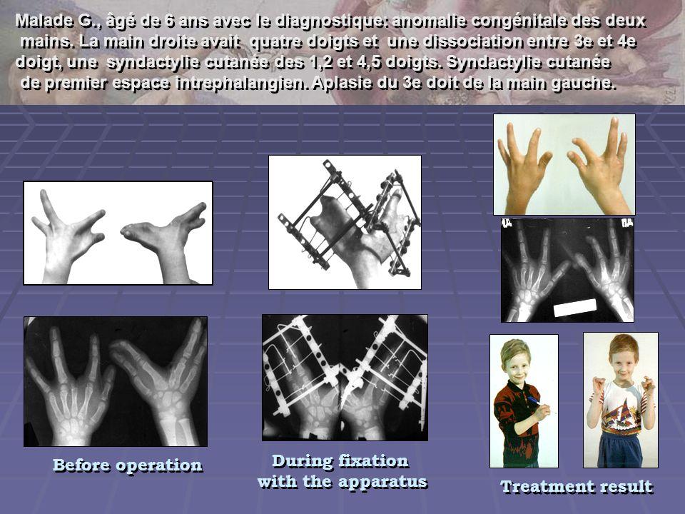 Malade G., âgé de 6 ans avec le diagnostique: anomalie congénitale des deux mains. La main droite avait quatre doigts et une dissociation entre 3e et