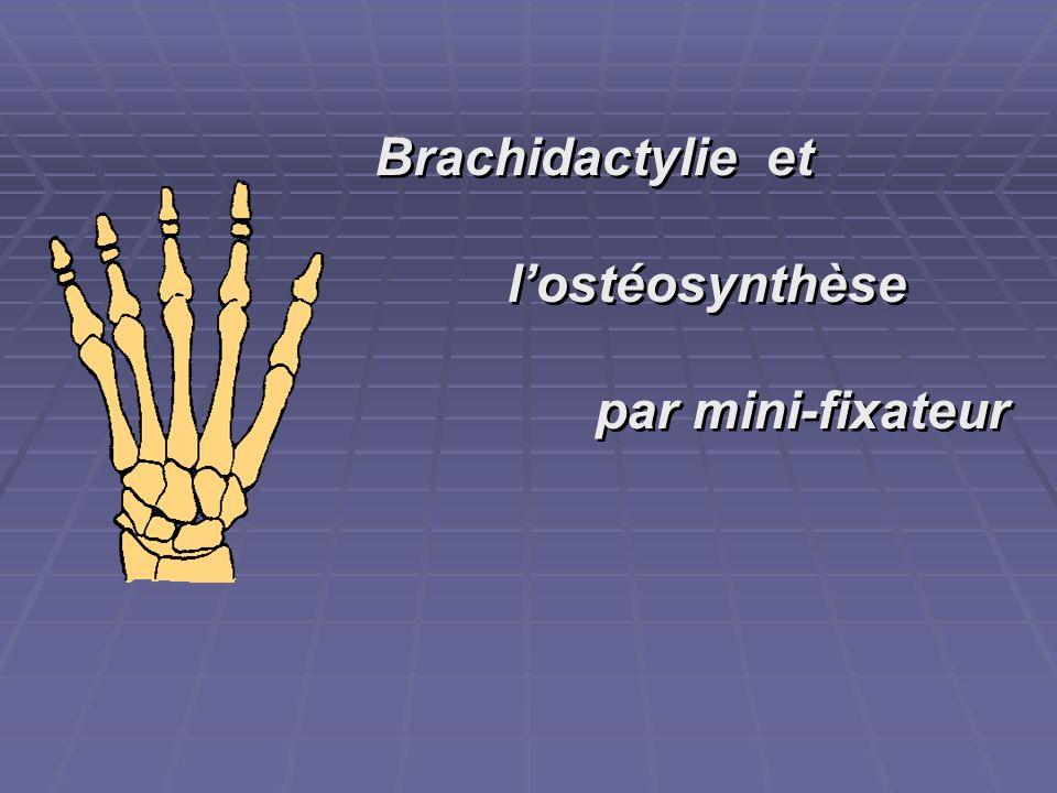 Brachidactylie et lostéosynthèse par mini-fixateur Brachidactylie et lostéosynthèse par mini-fixateur