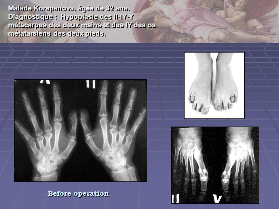 Malade Korepanova, âgée de 32 ans. Diagnostique : Hypoplasie des II-IY-Y métacarpes des deux mains et des IY des os métatarsiens des deux pieds. Malad