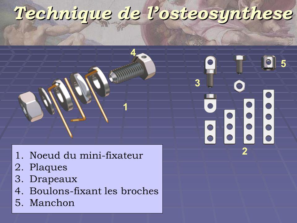 Introduction et fixation des broches 2-3 мм 90 0