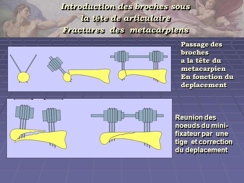 Introduction des broches sous la t ê te de articulaire Fractures des metacarpiens Introduction des broches sous la t ê te de articulaire Fractures des