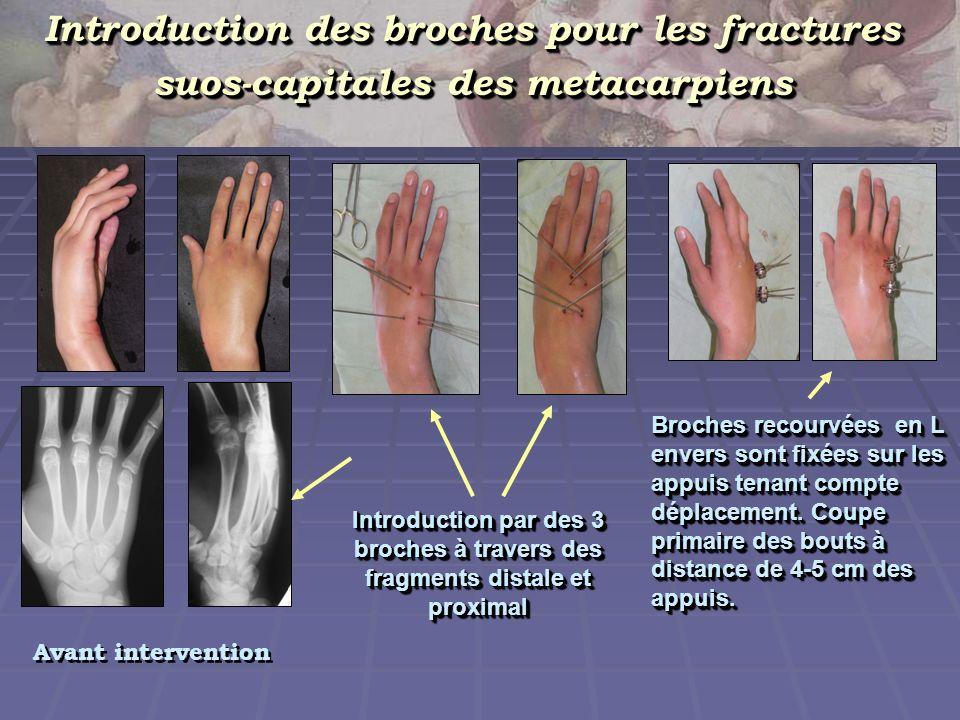 Reunion des appuis par une tige Reunion des appuis par une tige Aspet de la main avec montage définitf Etapes du traitement chirurgicale du malade avec fracture fermée du Ve métacarpien de la main droite Radio en deux projections.