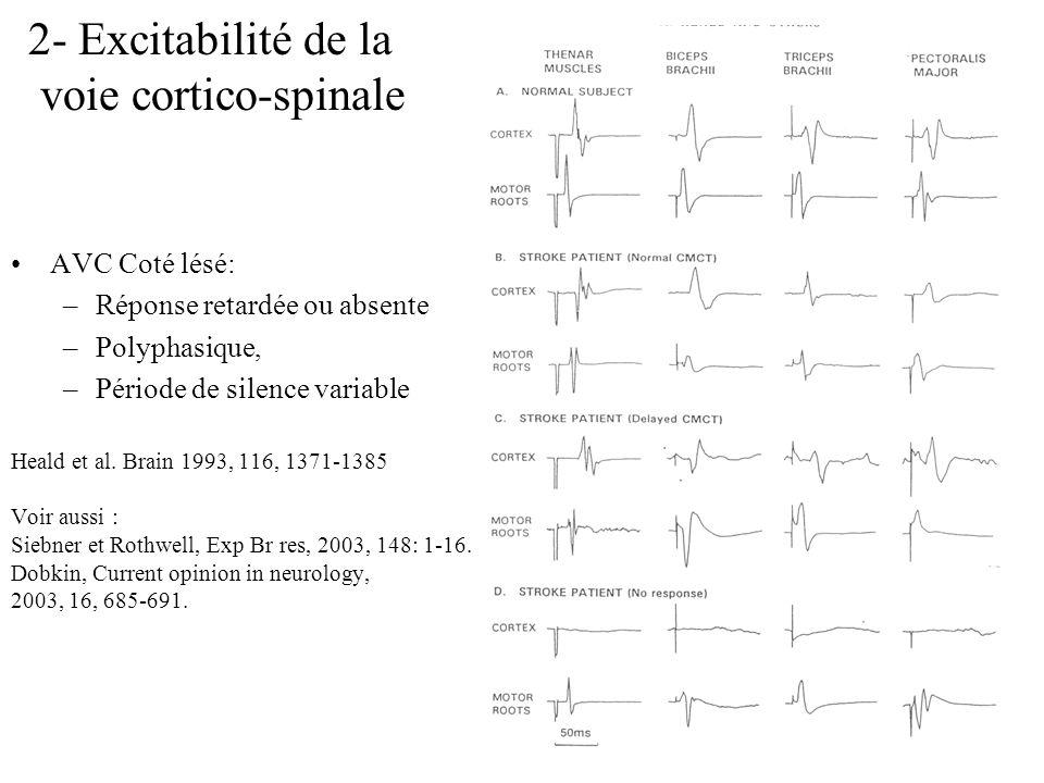 2- Excitabilité de la voie cortico-spinale AVC Coté lésé: –Réponse retardée ou absente –Polyphasique, –Période de silence variable Heald et al. Brain
