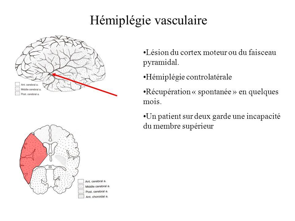 Hémiplégie vasculaire Lésion du cortex moteur ou du faisceau pyramidal. Hémiplégie controlatérale Récupération « spontanée » en quelques mois. Un pati