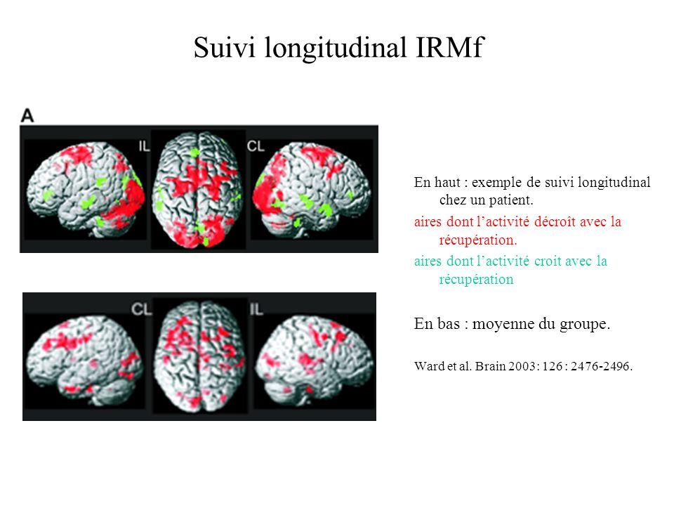 Suivi longitudinal IRMf En haut : exemple de suivi longitudinal chez un patient. aires dont lactivité décroît avec la récupération. aires dont lactivi