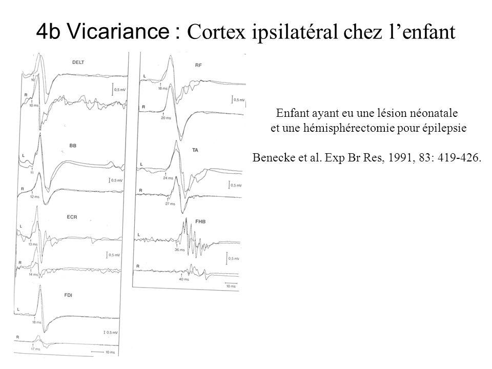 4b Vicariance : Cortex ipsilatéral chez lenfant Enfant ayant eu une lésion néonatale et une hémisphérectomie pour épilepsie Benecke et al. Exp Br Res,