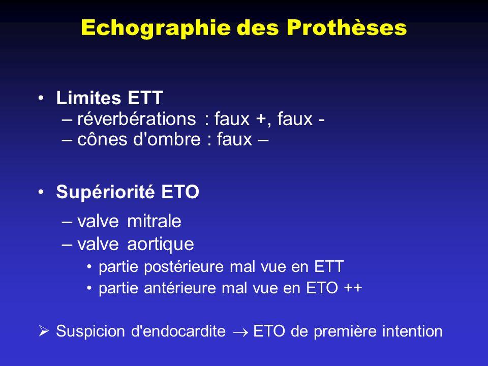 Echographie des Prothèses Limites ETT –réverbérations : faux +, faux - –cônes d'ombre : faux – Supériorité ETO –valve mitrale –valve aortique partie p