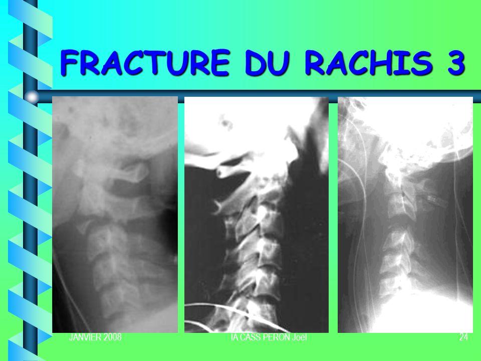JANVIER 2008IA CASS PERON Joël25 FRACTURE DU RACHIS 4