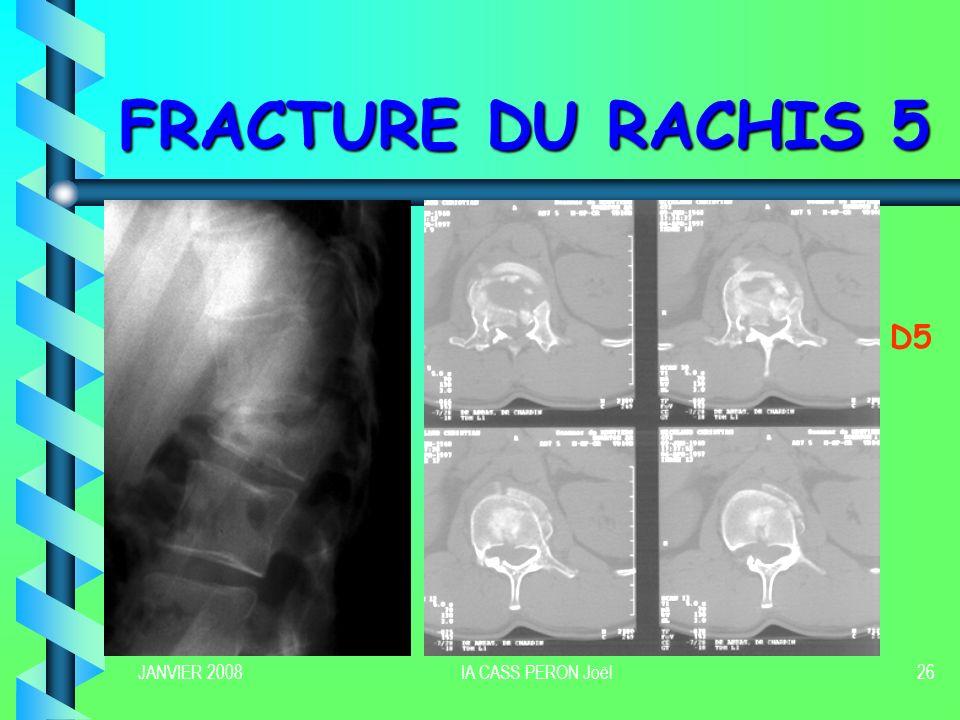 JANVIER 2008IA CASS PERON Joël27 PRISE EN CHARGE THERAPEUTIQUE 1 Tout blessé avec une lésion avérée ou douteuse est Hospitalisé et considéré comme à risque de complications neurologique Traitement fonctionnel (mobilisation précoce) Traitement fonctionnel (mobilisation précoce) Traitement orthopédique Traitement orthopédique Traitement chirurgical Traitement chirurgical