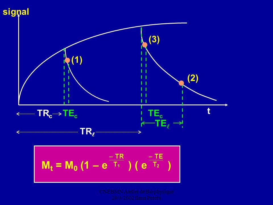CNEBMN Atelier de Biophysique 29/3/2002 Ilana Peretti M t = M 0 (1 – e ) ( e ) t (1) (3) (2) signal TR c TE c TE c TE TR
