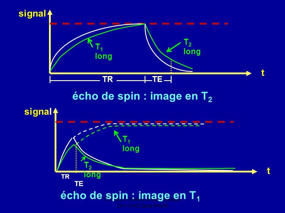 CNEBMN Atelier de Biophysique 29/3/2002 Ilana Peretti TR écho de spin : image en T 1 signal t T 2 long T 1 long TE écho de spin : image en T 2 signal