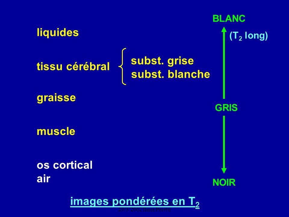 CNEBMN Atelier de Biophysique 29/3/2002 Ilana Peretti tissu cérébral subst. grise subst. blanche muscle os cortical air BLANC (T 2 long) GRIS NOIR ima