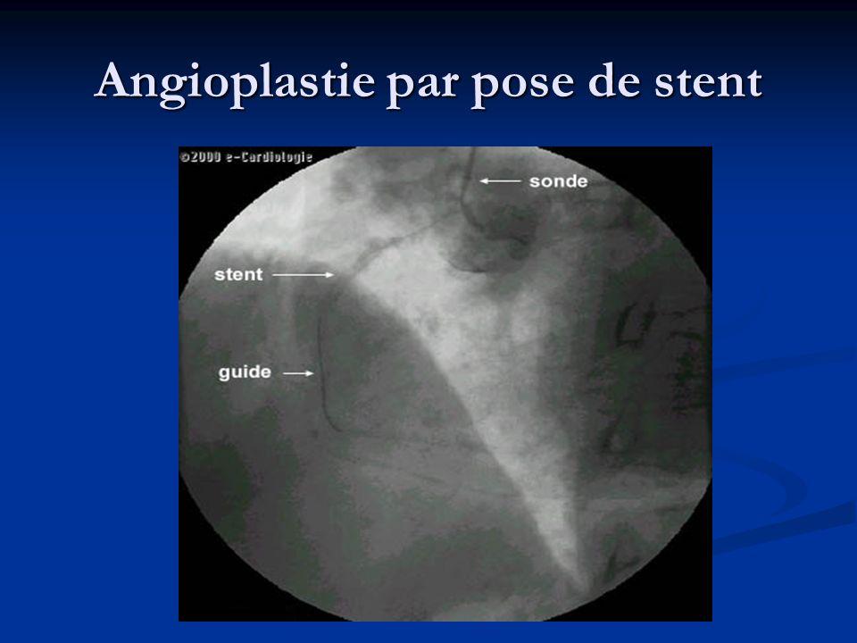 Angioplastie par pose de stent