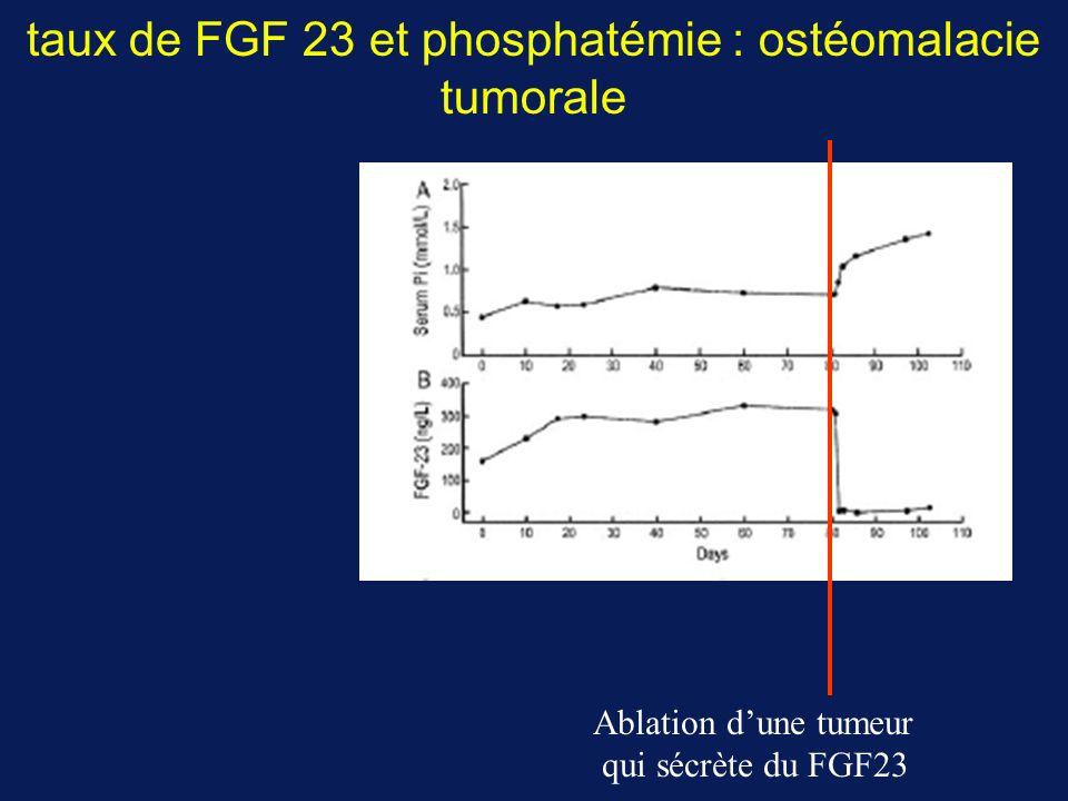 taux de FGF 23 et phosphatémie : ostéomalacie tumorale Ablation dune tumeur qui sécrète du FGF23
