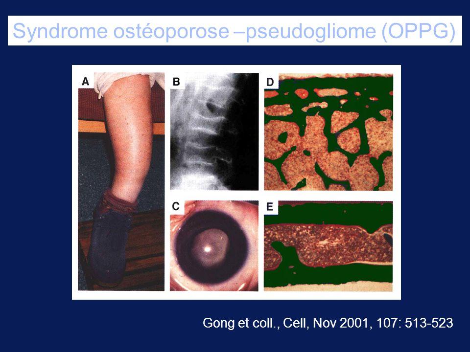Syndrome ostéoporose –pseudogliome (OPPG) Gong et coll., Cell, Nov 2001, 107: 513-523