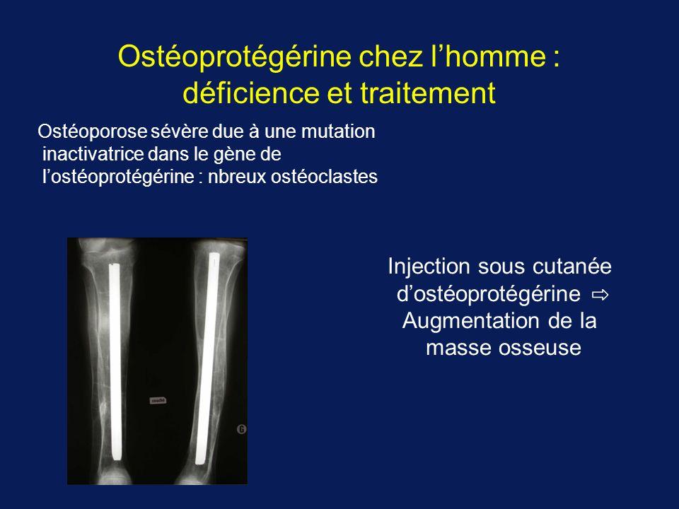 Ostéoprotégérine chez lhomme : déficience et traitement Ostéoporose sévère due à une mutation inactivatrice dans le gène de lostéoprotégérine : nbreux