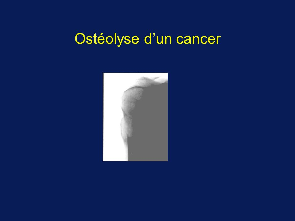 Ostéolyse dun cancer