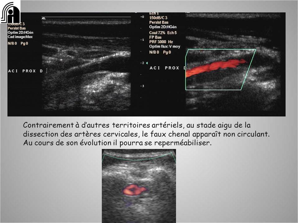 Contrairement à dautres territoires artériels, au stade aigu de la dissection des artères cervicales, le faux chenal apparaît non circulant. Au cours