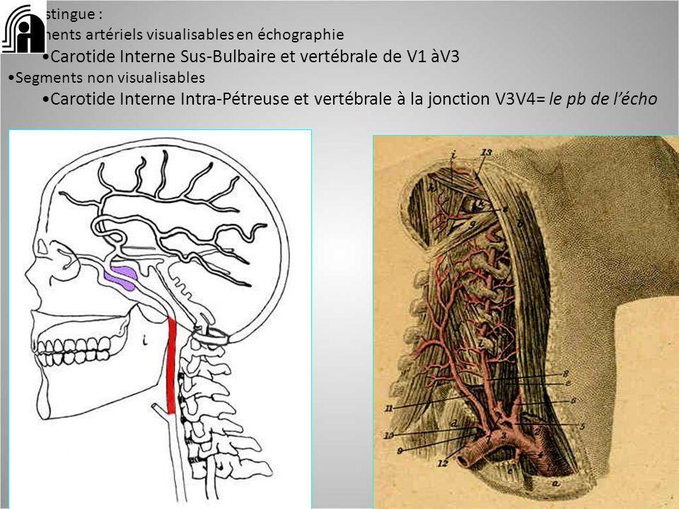 On distingue : segments artériels visualisables en échographie Carotide Interne Sus-Bulbaire et vertébrale de V1 àV3 Segments non visualisables Caroti
