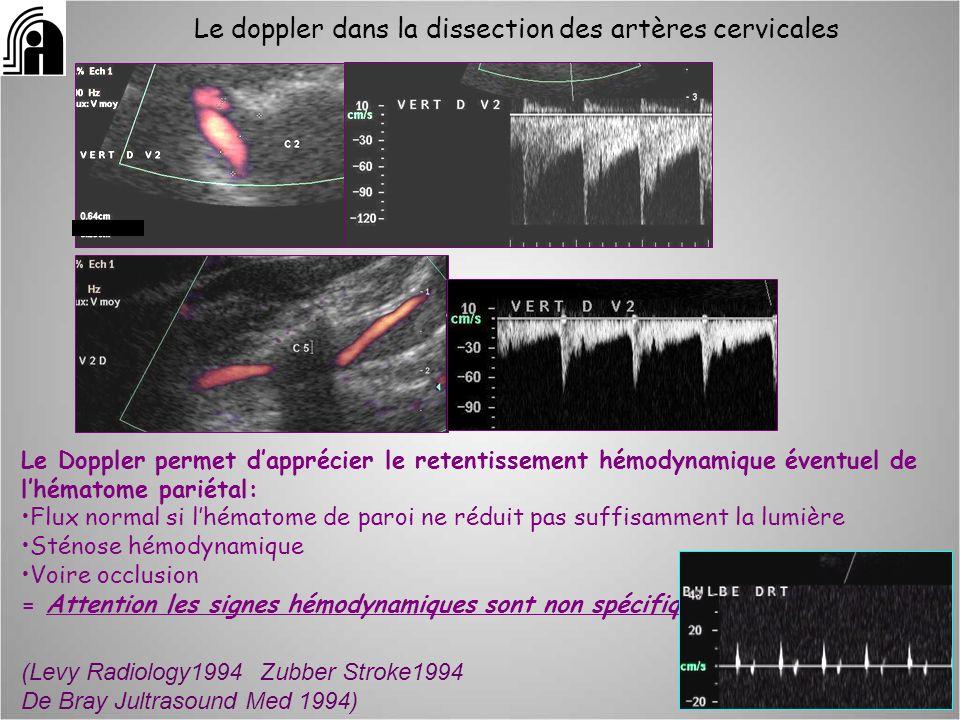 Le Doppler permet dapprécier le retentissement hémodynamique éventuel de lhématome pariétal: Flux normal si lhématome de paroi ne réduit pas suffisamm