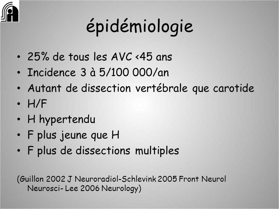 épidémiologie 25% de tous les AVC <45 ans Incidence 3 à 5/100 000/an Autant de dissection vertébrale que carotide H/F H hypertendu F plus jeune que H