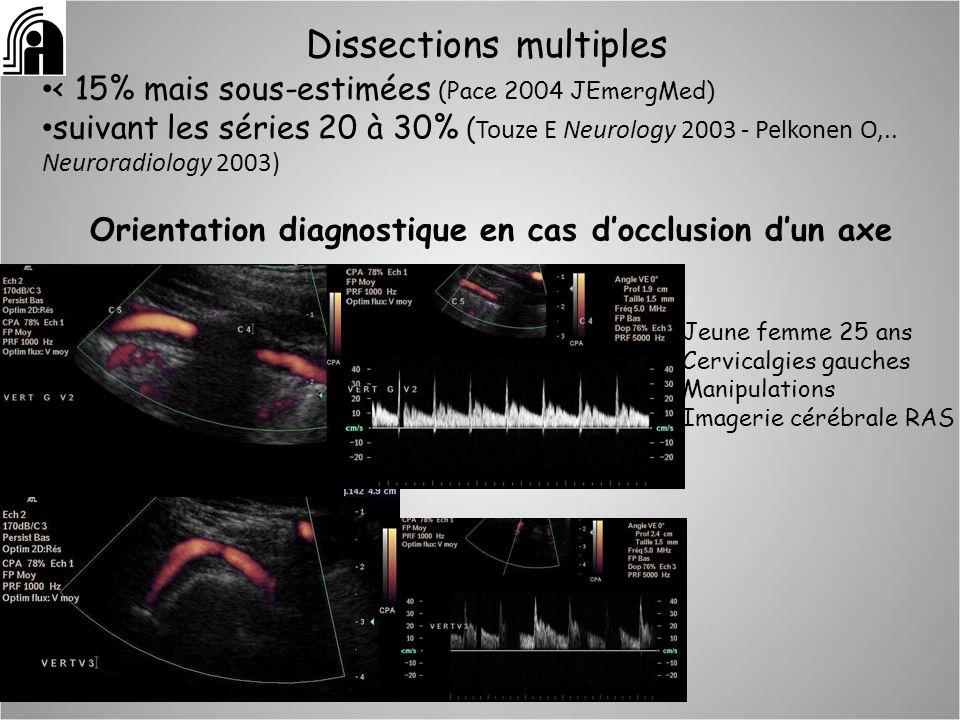 Dissections multiples < 15% mais sous-estimées (Pace 2004 JEmergMed) suivant les séries 20 à 30% ( Touze E Neurology 2003 - Pelkonen O,.. Neuroradiolo