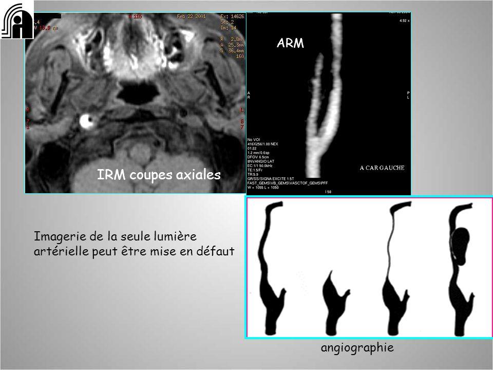 IRM coupes axiales: Imagerie de la seule lumière artérielle peut être mise en défaut ARM angiographie
