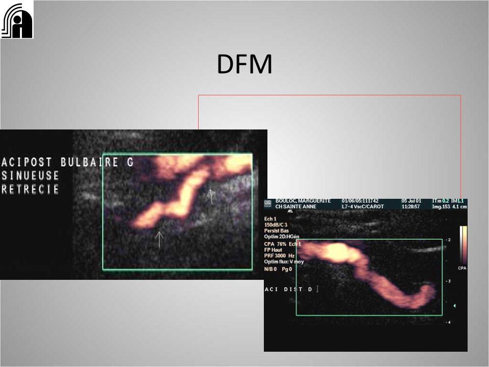 LE COMPTE-RENDU Des informations morphologiques: -hématome pariétal – localisation précise: V1, en V2 (hauteur par rapport aux apophyses transverses), V3, carotide interne sous pétreuse, sus bulbaire – Diamètre externe de lartère élargie, diamètre de la lumière circulante résiduelle= suivi évolutif de lhématome ET des informations hémodynamiques: – flux normal, sténose, occlusion en regard de la lésion – Retentissement hémodynamique en aval de la lésion – apprécie les résistances circulatoires dans le territoire daval Les signes hémodynamiques sont non spécifiques mais les seuls pour les segments artériels non visualisables en écho un ED normal nélimine pas le diagnostic (segments non visualisables et pas de signe hémodynamique) => IRM cervicale