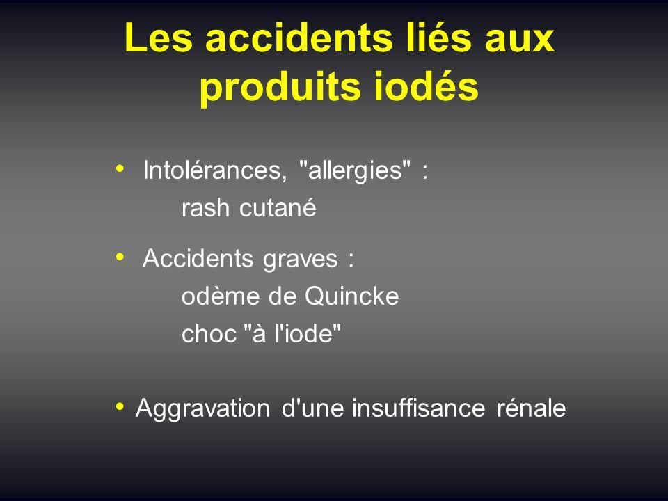 Les accidents liés aux produits iodés Intolérances,