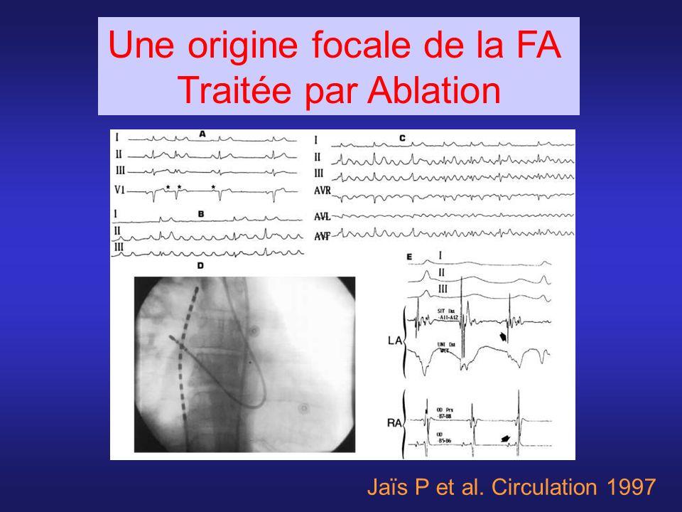Jaïs P et al. Circulation 1997 Une origine focale de la FA Traitée par Ablation
