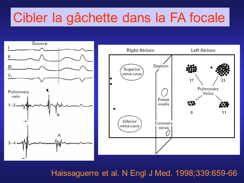 Haissaguerre et al. N Engl J Med. 1998;339:659-66 Cibler la gâchette dans la FA focale