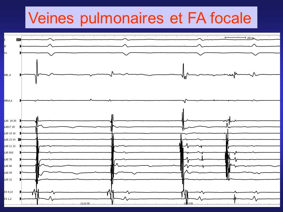 Veines pulmonaires et FA focale