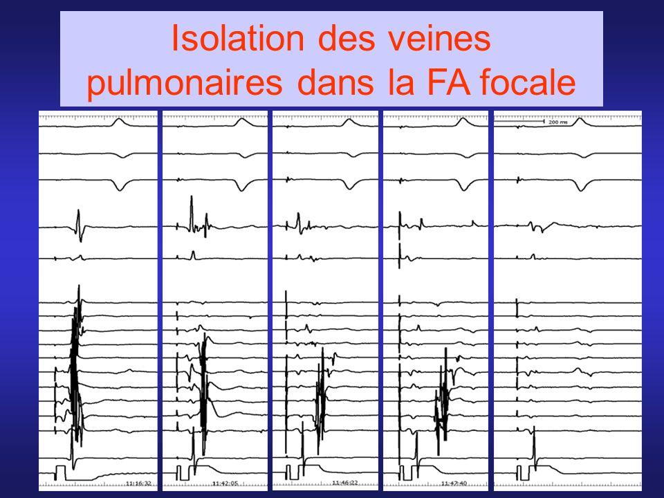 Isolation des veines pulmonaires dans la FA focale
