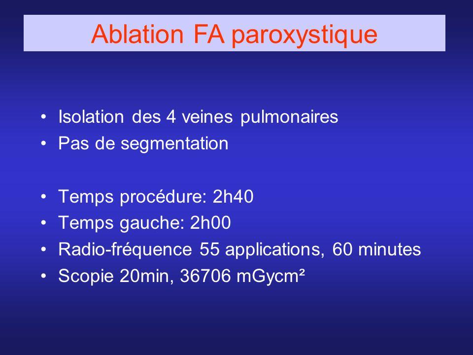 Isolation des 4 veines pulmonaires Pas de segmentation Temps procédure: 2h40 Temps gauche: 2h00 Radio-fréquence 55 applications, 60 minutes Scopie 20m
